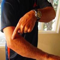 افزایش خطر بروز تاندونیت به هنگام کار کردن