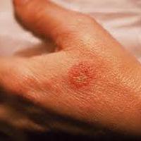 مصرف کورتونهای قوی منجر به عفونت اگزما میشود