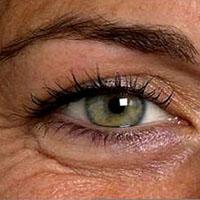آنچه باید درباره چروک اطراف چشم بدانید