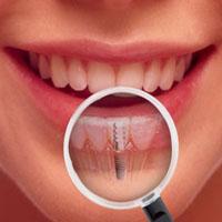 تحلیل استخوان های فک در اثر دندان های خراب