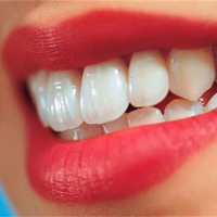 دندانمان را جرم گیری کنیم یا خیر ؟