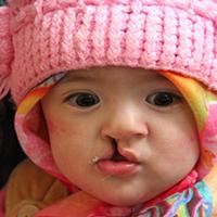درمان نوزادان محروم مبتلا به شکاف کام گامی در جهت بهداشت روانی جامعه