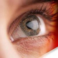 عامل ورم ملتحمه چشم چیست؟