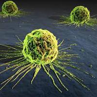 ریسک ابتلا به سرطان حنجره در مردان ۴ برابر بیشتر از زنان است
