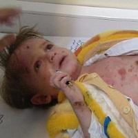 مبتلایان به بیماری «ایبی» و رنج مضاعف