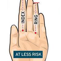 ارتباط طول انگشتان دست با خطر ابتلا به سرطان پروستات