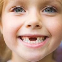 رفلاکس موجب پوسیدگی دندان میشود