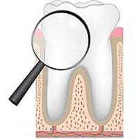 بالابودن این ماده در آب رنگ دندان را عوض میکند