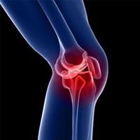 چرا دچار آرتروز زانو می شویم؟