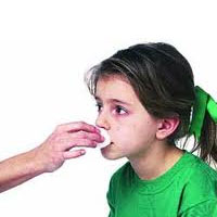 علل خونریزی مکرر بینی