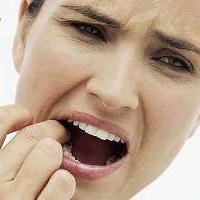 چگونه آفت دهان را درمان کنیم؟