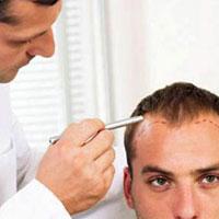 رایجترین روش کاشت مو