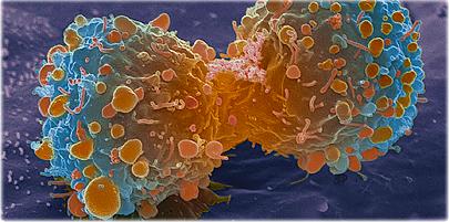 مدرکی برای اثبات ارتباط استفاده از مواد آرایشی با سرطان وجود ندارد