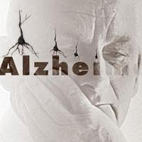 هر 12 دقیقه یک نفر در ایران به آلزایمر مبتلا می شود