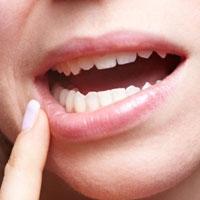 با کمبود این ویتامین ها آفت دهان می زنید