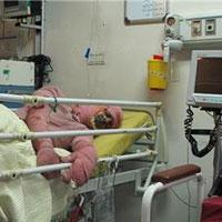 استاندارد نبودن بیمارستانهای سوختگی در کشور