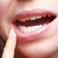 زخم دهان را جدی بگیرید