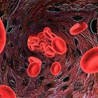 رابطه سن پدر و خطر ابتلای نوزاد به سرطان خون