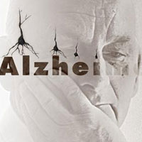 آلزایمر گرفتهام؟