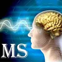 دستیابی به یک روش جدید برای کاهش پیشرفت بیماری ام اس