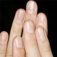 تغییرات غیرعادی در ناخنها میتواند نشانه این بیماریها باشد