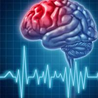 با هر بار سکته،مغز 8 سال پیرتر می شود