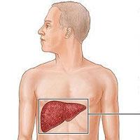 خستگی و درد شکم از علایم کبد چرب