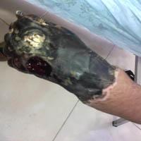 عکسهای دردناکی از بیماران سوخته+لزوم توجه بیشتر مسئولین به درمانِ سوختگی