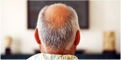 کدام یک از موارد زیر باعث کاهش ریزش موی سر در مردان می شود؟