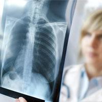 تشخیص عفونت ریه با یک تماس تلفنی!
