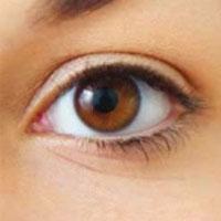 ۴ روش درمان افتادگی پلک