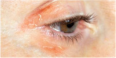 اگر پوستتان به آلفا هیدروکسی اسیدها حساسیت نشان میدهد، چه مادهای را میتوان جایگزین آن کرد؟
