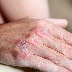 با مشاهده این 5 علامت به متخصص پوست مراجعه کنید