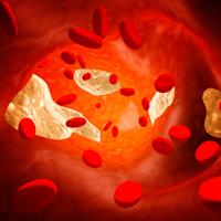 یک دستورالعمل طبیعی برای خلاص شدن از شر چربی خون