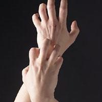 شایعترین بیماری پوستی را بشناسید