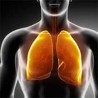 نشانه های بروز مشکل در ریه ها