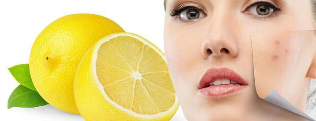 10 روش فوق العاده موثر برای درمان لکه های پوستی