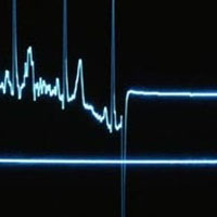 ایست قلبی علت مرگ دانشجوی پزشکی شهرکرد!