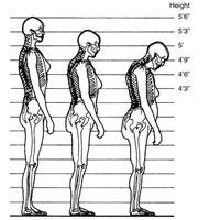 اینفوگرافی/چگونه از کوتاه شدن قد در بزرگسالی پیشگیری کنیم؟