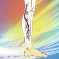 image 13960718723402 ۸ روش موثر برای پیشگیری از ایجاد رگ های عنکبوتی!   آموزش   زندگی سالم سلامت