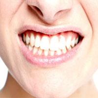 دندانهای سفید، شفاف و براق، استحکام و سلامت کمتری دارند