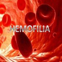 خونریزی در بیماری هموفیلی می تواند به مفاصل آسیب جدی بزند