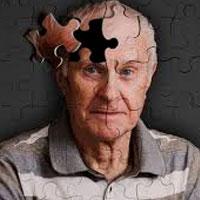 تشخیص زودهنگام آلزایمر امکان پذیر شد