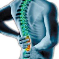 کمر درد : حقایق و باورهای غلطی که باید بدانید
