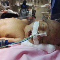 نوزادان نارس در معرض چه خطراتی هستند؟